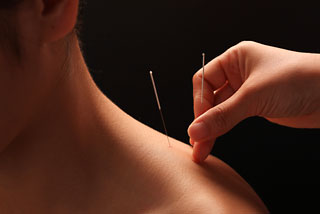 acupunture needles on shoulder